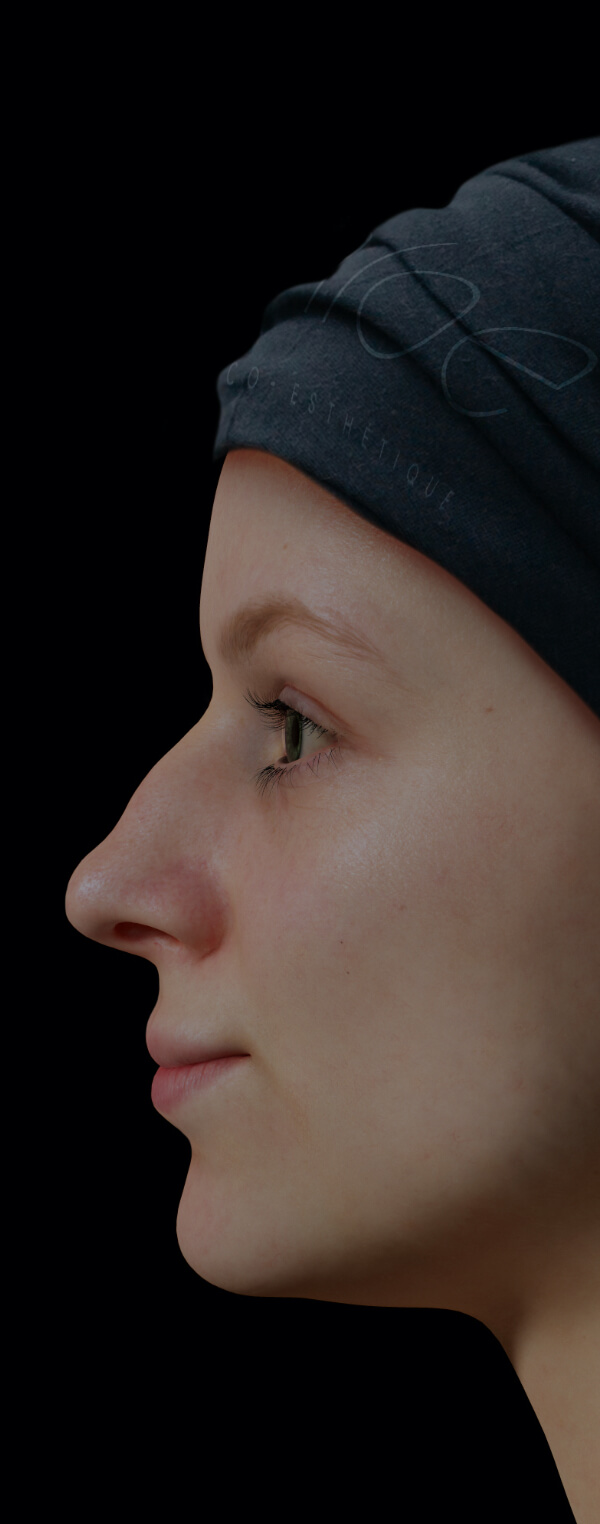 Patiente de la Clinique Chloé présentant un nez avec des irrégularités