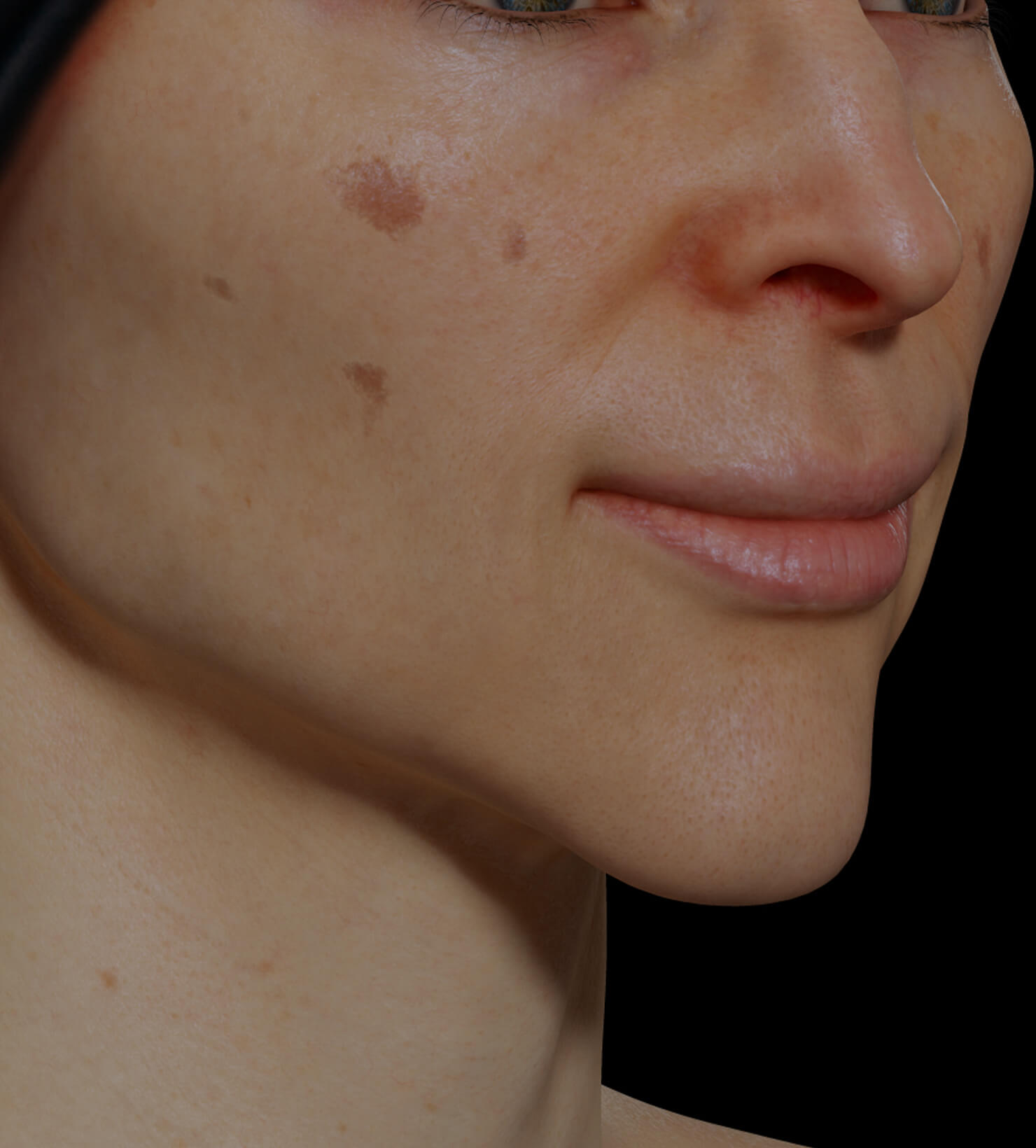 Clinique Chloé female patient with pigmented lesions, or dark spots, on the face getting treated with microneedling