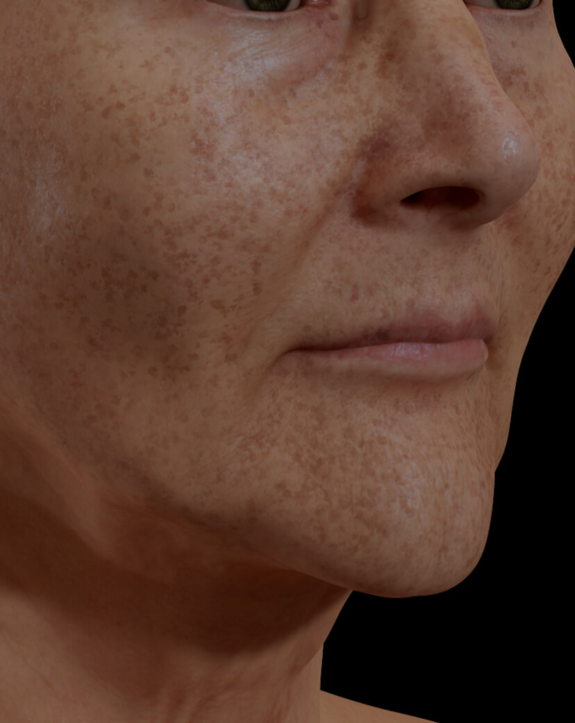 Clinique Chloé female patient with pigmented lesions, or dark spots, on the face getting treated with IPL photorejuvenation