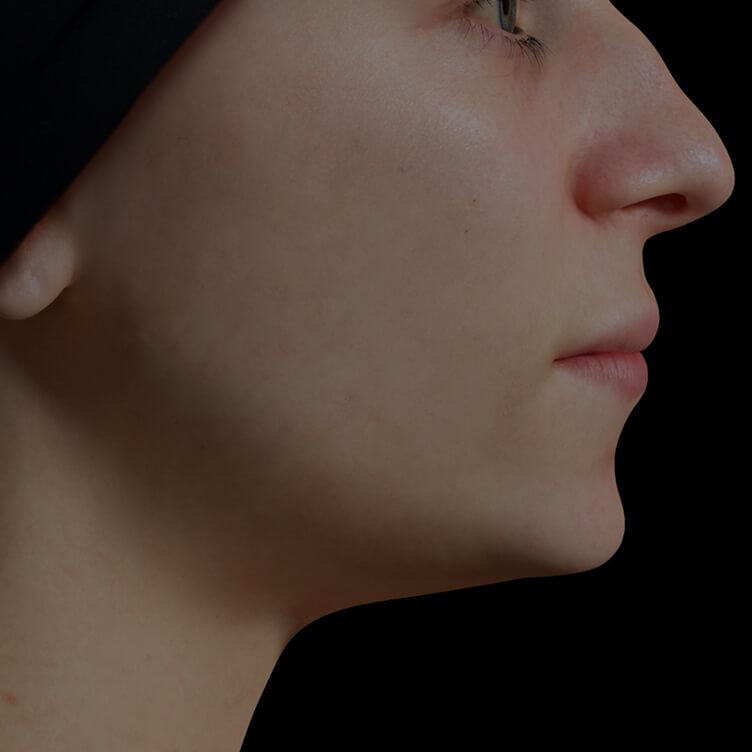 Patiente de la Clinique Chloé présentant une mâchoire peu définie traitée avec des injections d'agents de comblement