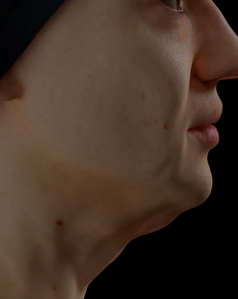 Patiente de la Clinique Chloé présentant une mâchoire peu définie traitée avec le laser Fotona 4D pour une meilleure définition