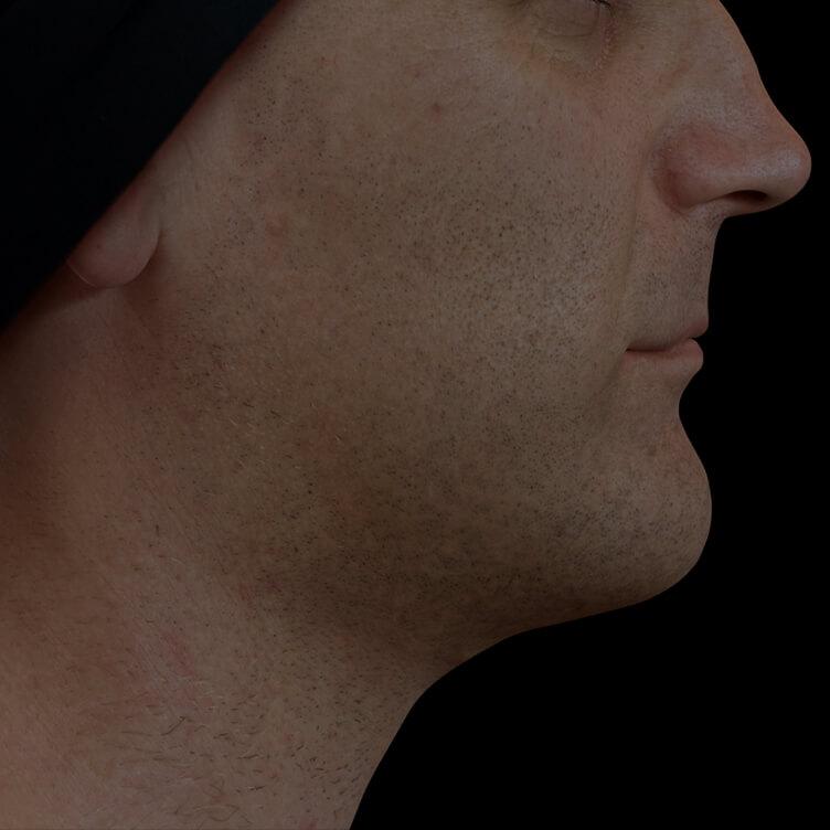 Patient de la Clinique Chloé présentant une mâchoire peu définie traité avec le Profound RF pour une meilleure définition