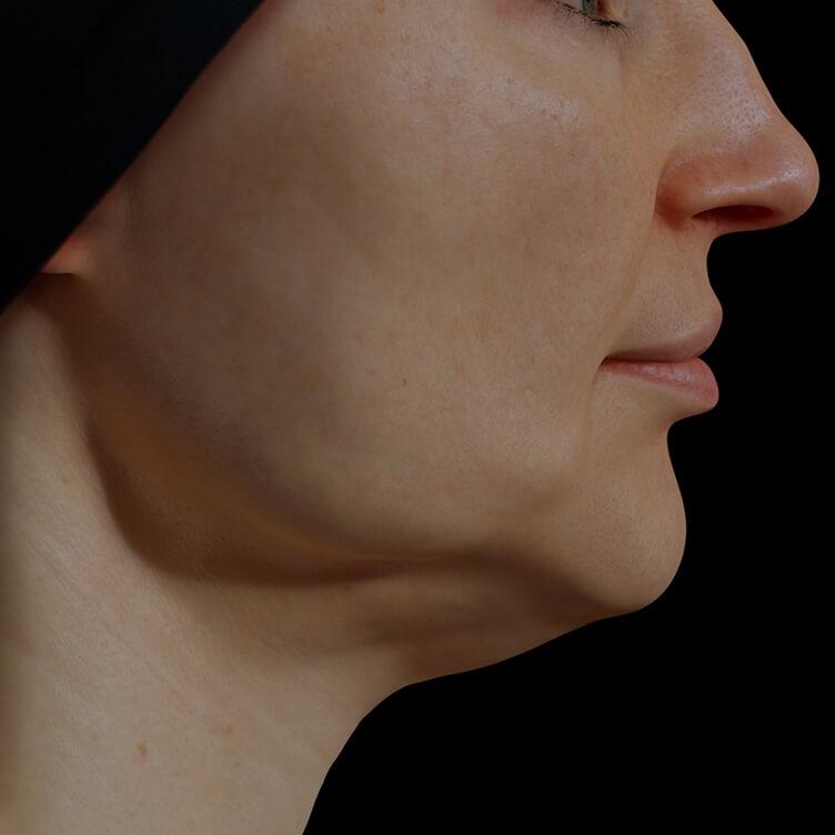 Patiente de la Clinique Chloé présentant une mâchoire peu définie traitée avec le Venus Legacy pour une meilleure définition