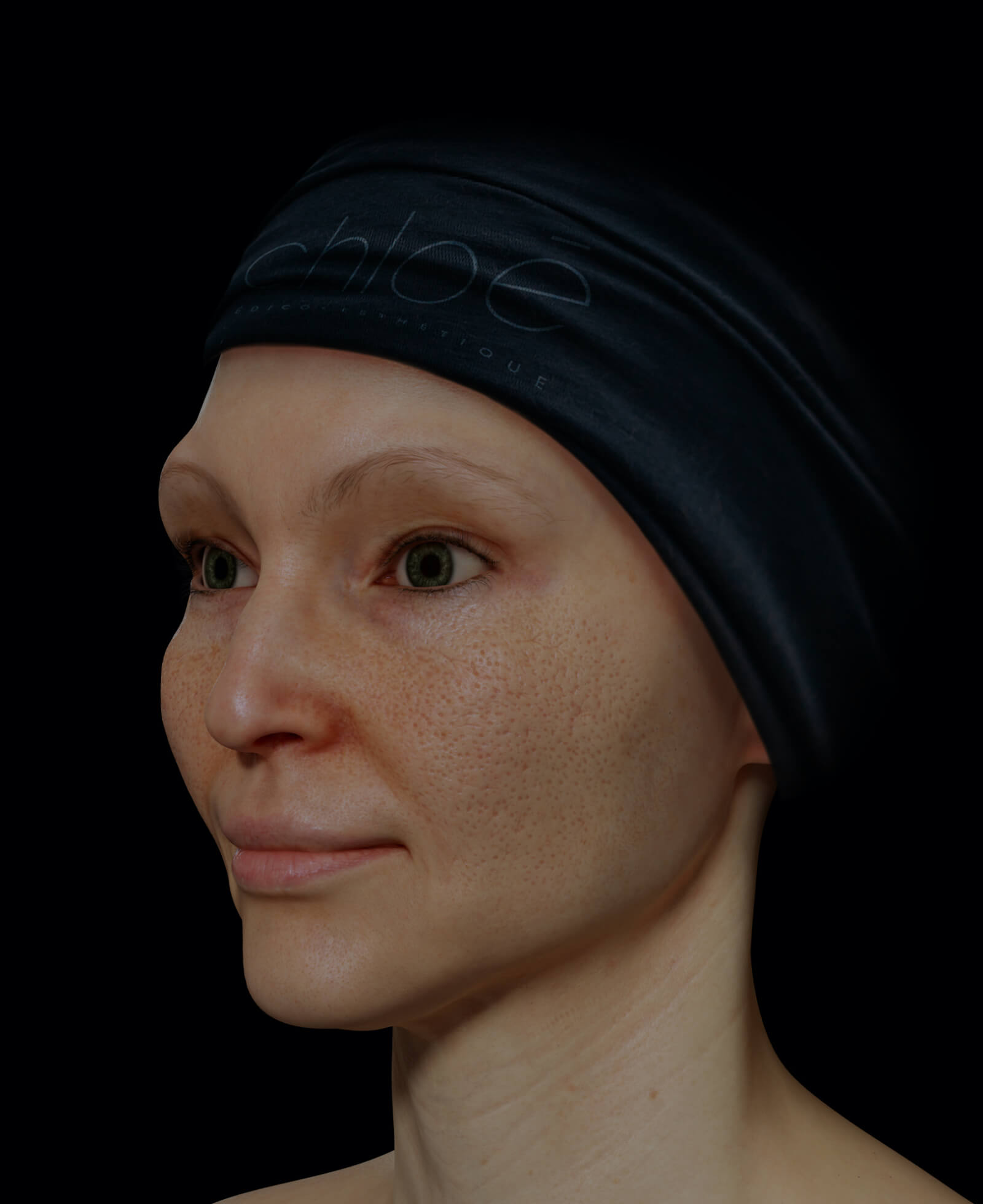 Female patient at Clinique Chloé with dilated pores on the skin of her face