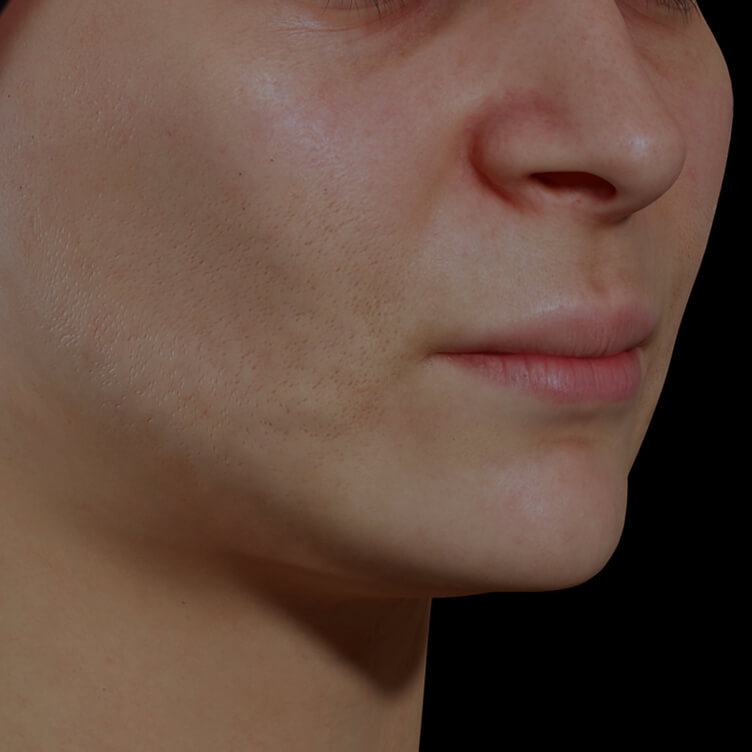 Clinique Chloé female patient with dilated pores on the face getting treated with IPL photorejuvenation