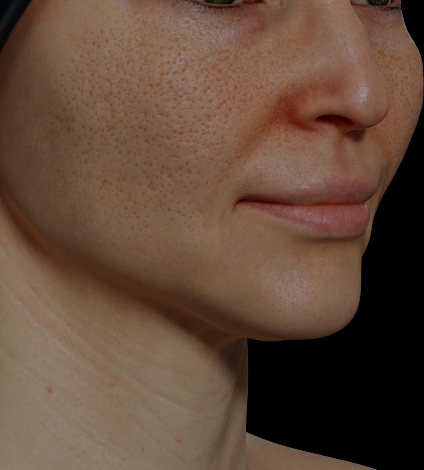 Clinique Chloé female patient with dilated pores on the face getting treated with Venus Viva fractional radiofrequency