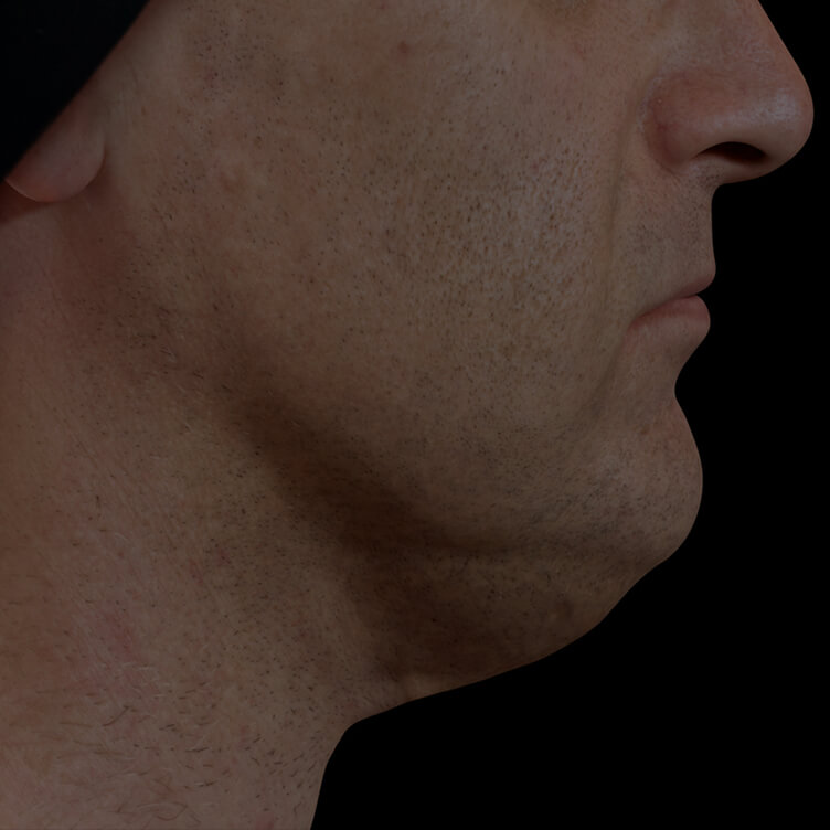 Clinique Chloé male patient with volume under the chin, or double chin, treated with Belkyra injections