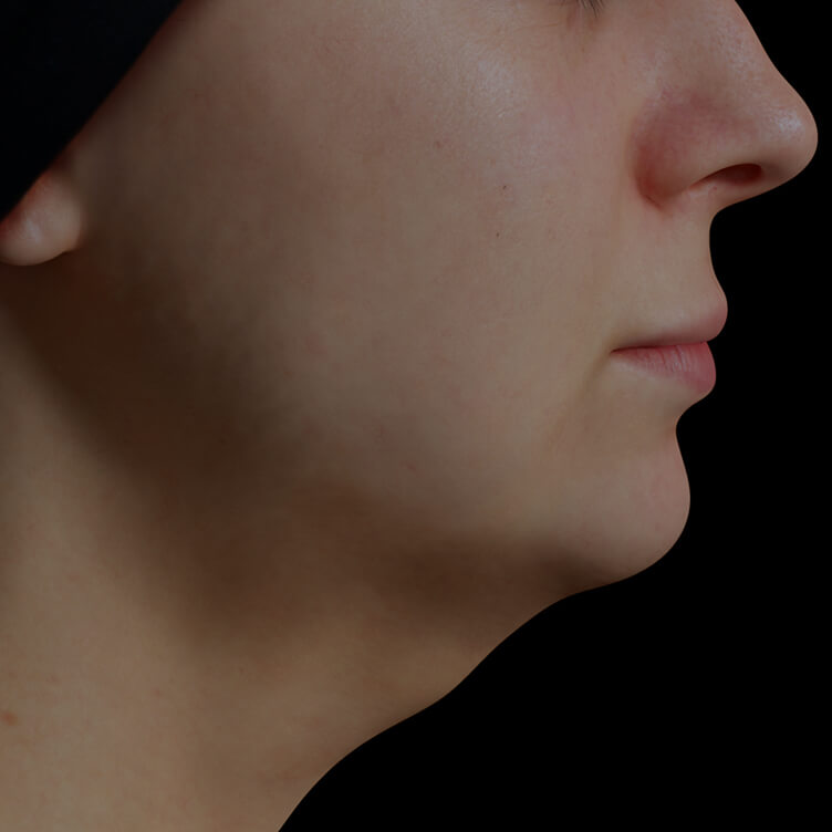 Clinique Chloé female patient with volume under the chin, or double chin, treated with Profound radiofrequency microneedling