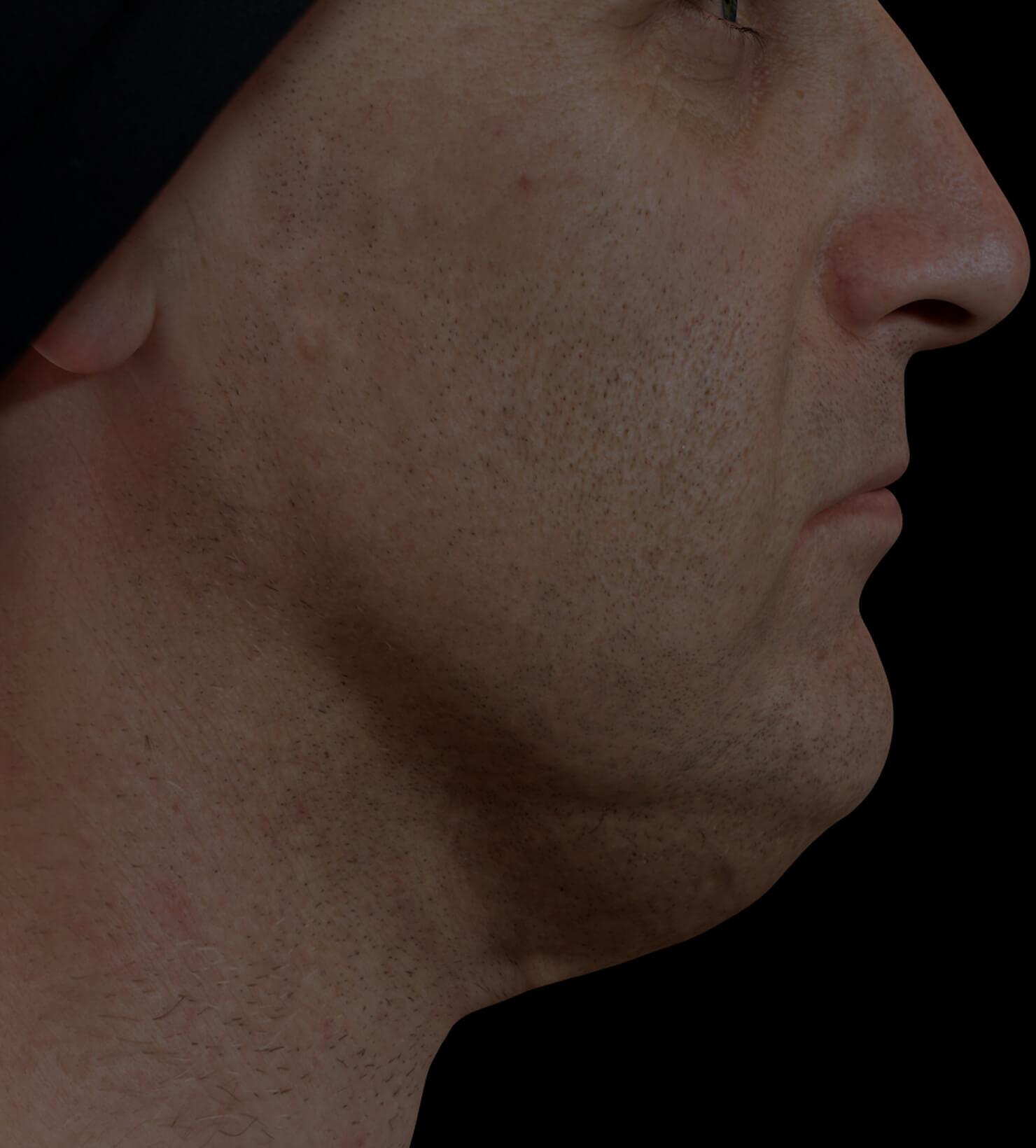 Patient de la Clinique Chloé ayant du gras sous le menton, ou double menton, traité avec des injections de Belkyra