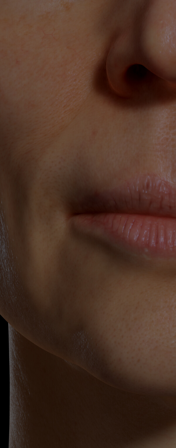Female patient at Clinique Chloé with dry lips