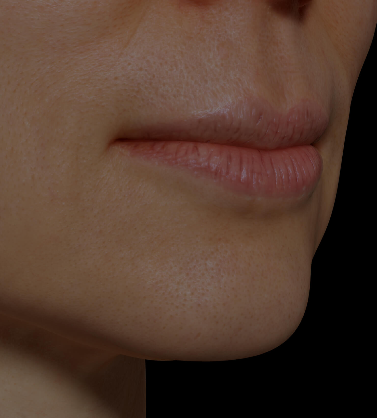 Clinique Chloé female patient with dry lips getting treated with mesotherapy for lip hydration