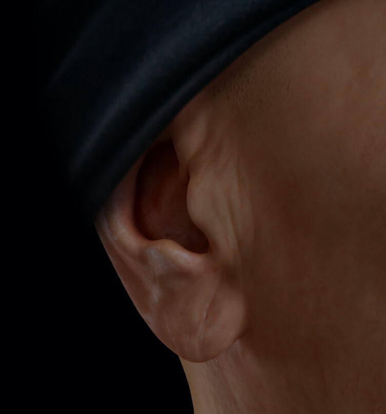 A female patient at Clinique Chloé that has droopy, sagging earlobes