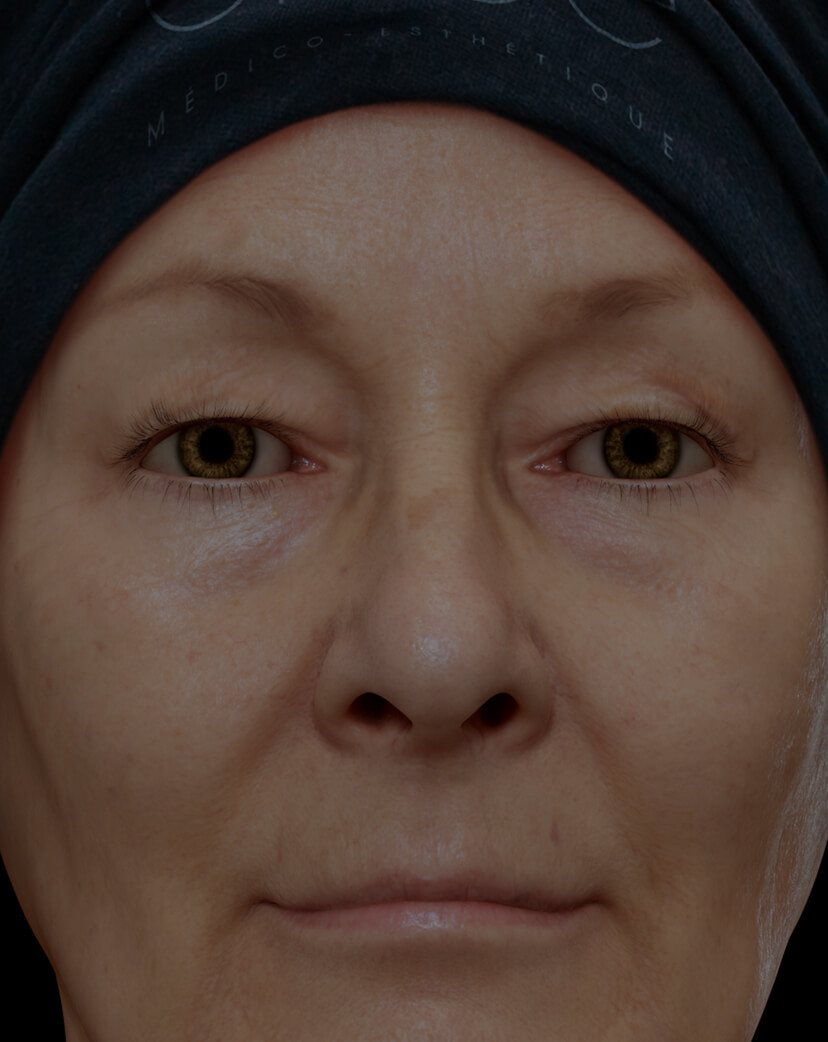 Clinique Chloé female patient with droopy, sagging eyelids treated with the fractional laser for eyelid lift
