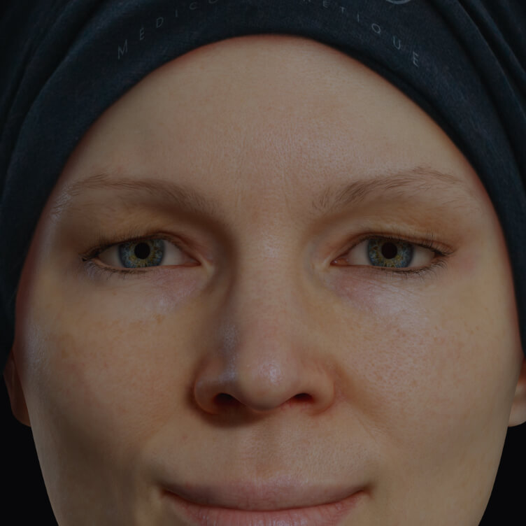 Clinique Chloé female patient with droopy, sagging eyelids treated with injections of neuromodulators for an eyelid lift