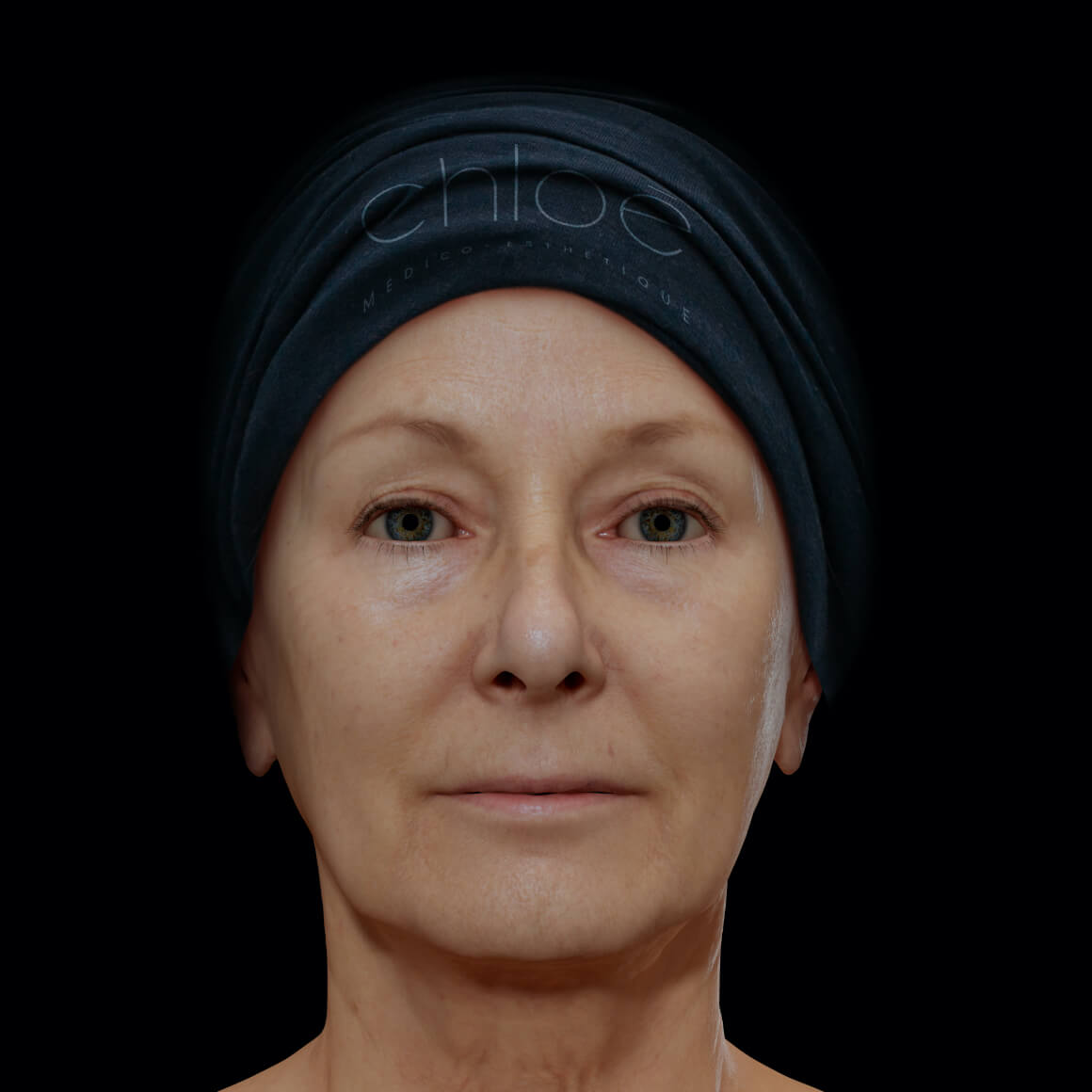 A female patient at Clinique Chloé, facing front, after neuromodulator injections to reduce or even erase wrinkles