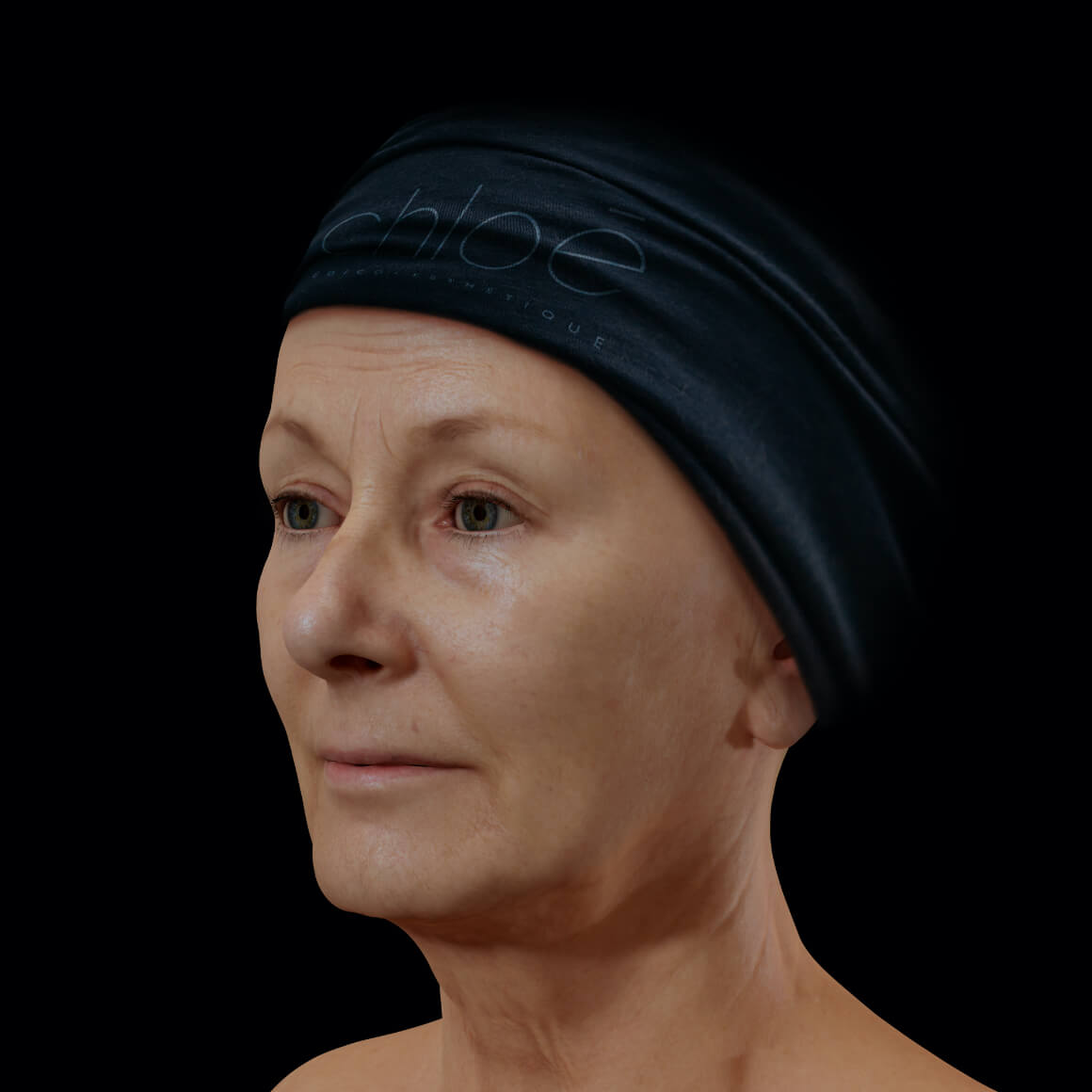 A female patient at Clinique Chloé, positioned at an angle, showing wrinkles and fine lines on her face
