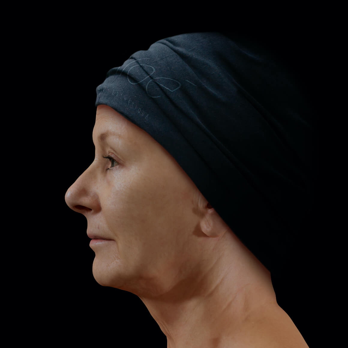 A female patient at Clinique Chloé, positioned sideways, showing wrinkles and fine lines on her face