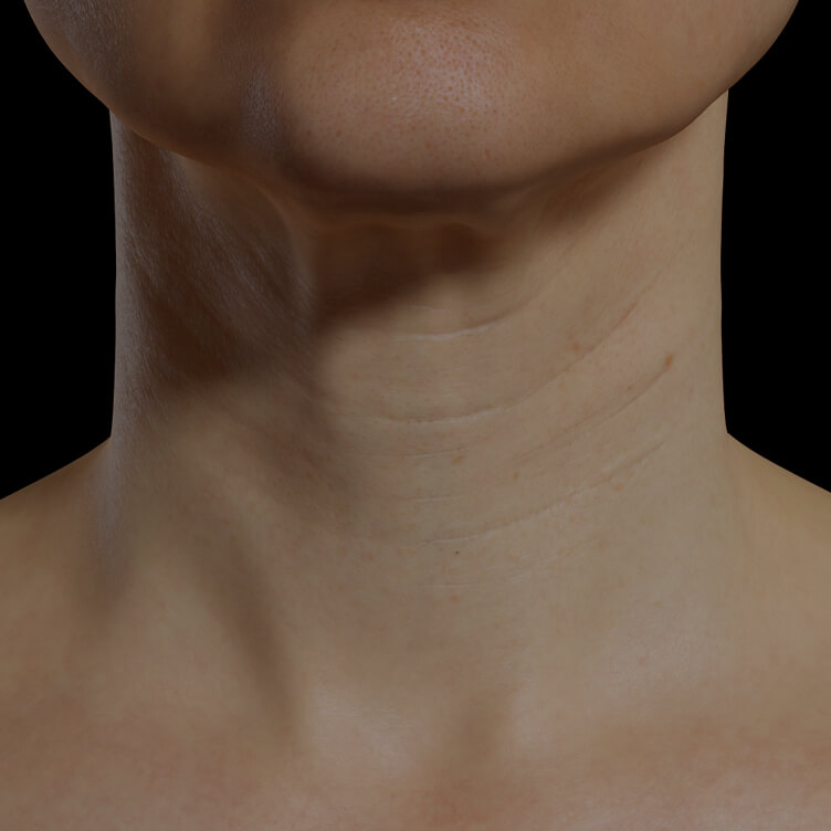 Clinique Chloé female patient with neck skin laxity treated with mesotherapy for neck skin tightening
