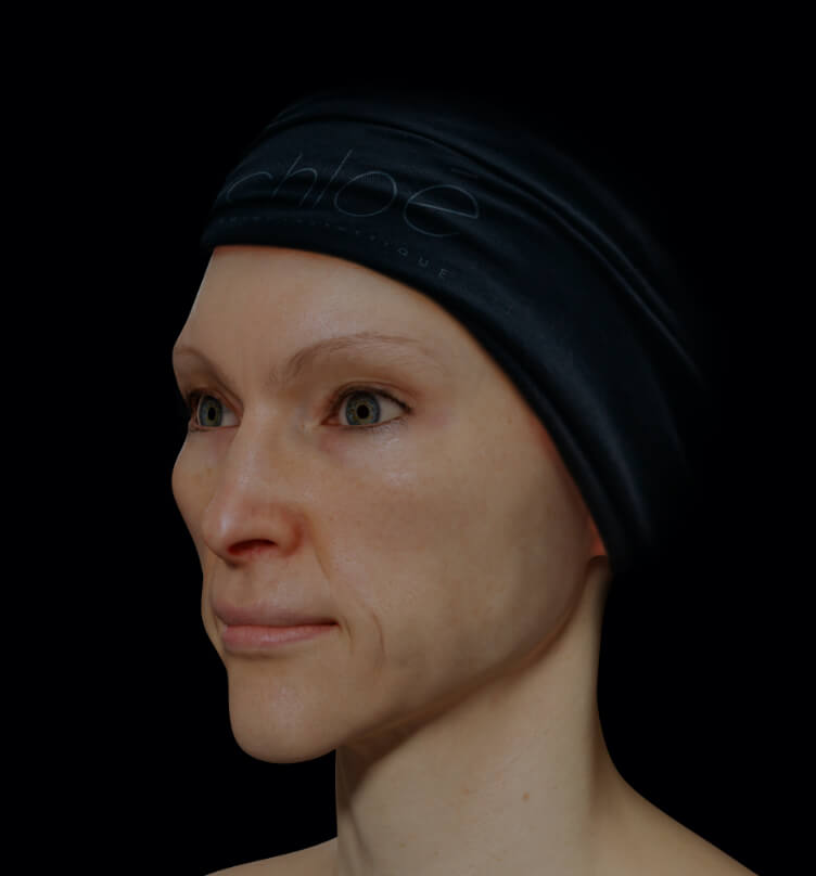 Female patient from Clinique Chloé with facial skin laxity
