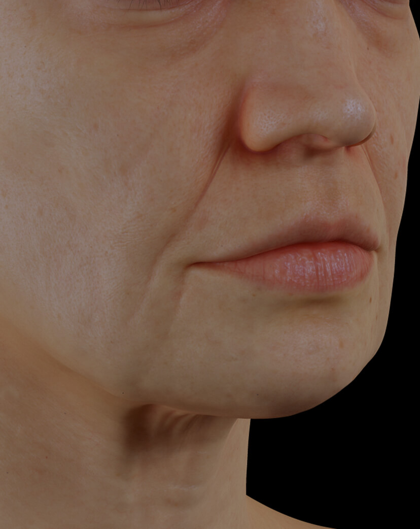 Clinique Chloé female patient with facial skin laxity treated with dermal filler injections for facial skin tightening