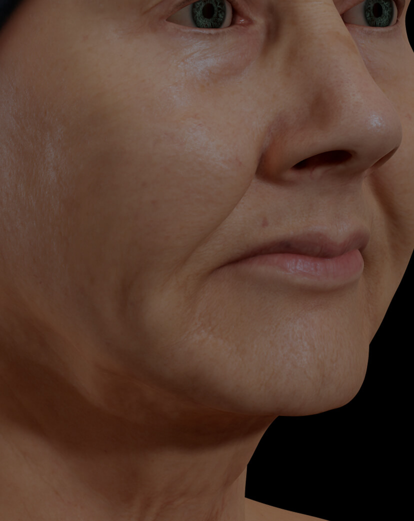 Clinique Chloé female patient with facial skin laxity treated with the SmoothLiftin laser for facial skin tightening