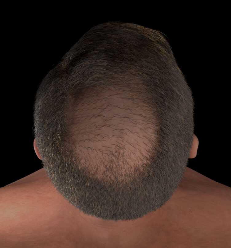 Male patient from Clinique Chloé with hair loss