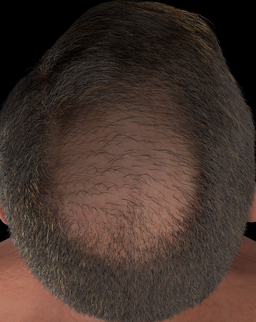 Clinique Chloé male patient with advanced hair loss treated with platelet-rich plasma, or PRP