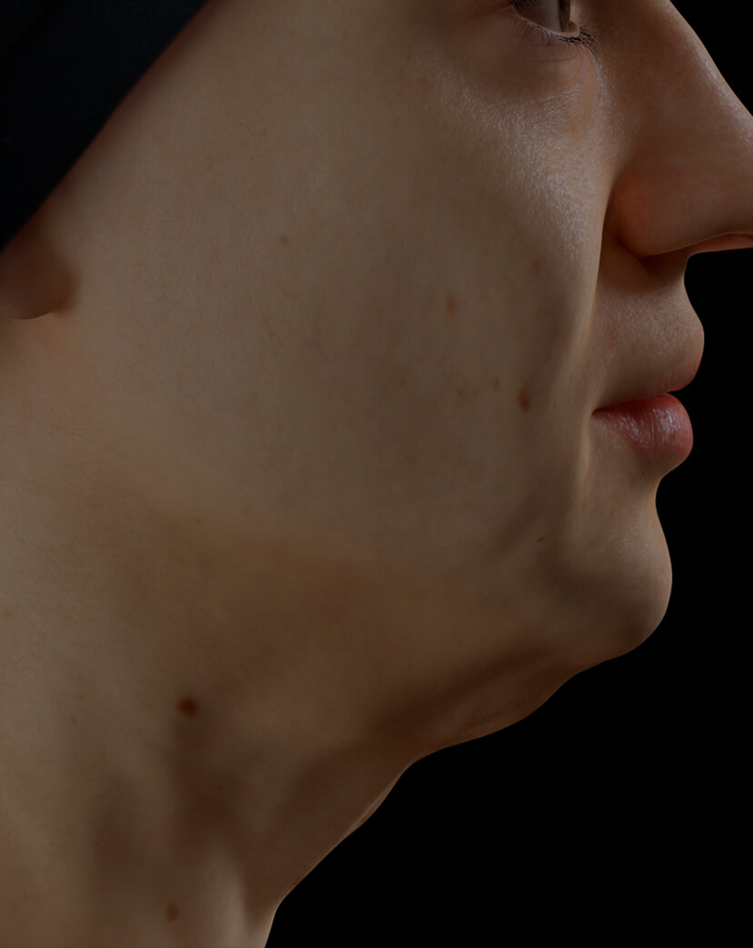 Clinique Chloé female patient with poor jawline definition treated with the Fotona 4D laser for a more defined jawline