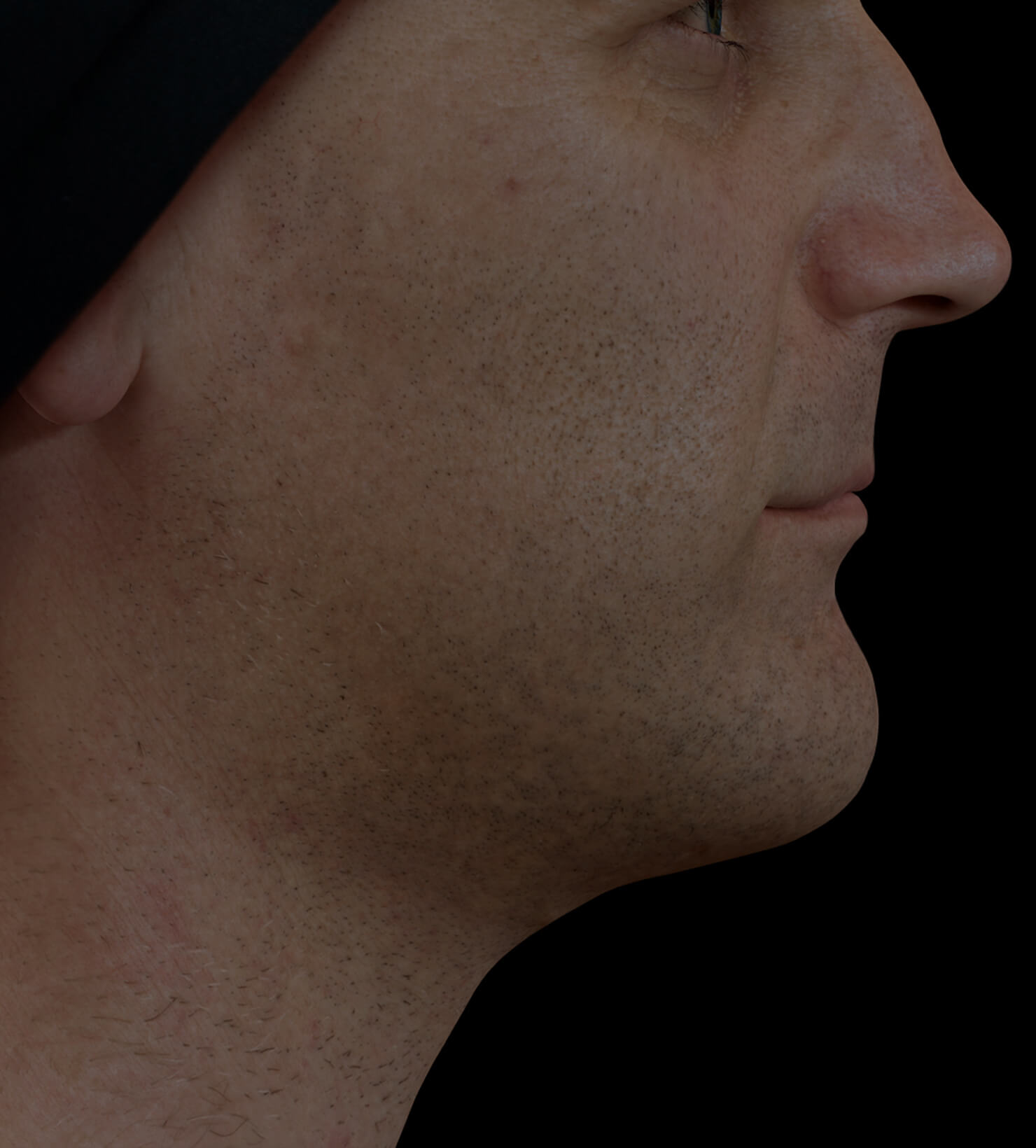 Clinique Chloé male patient with poor jawline definition treated with Profound RF for a more defined jawline