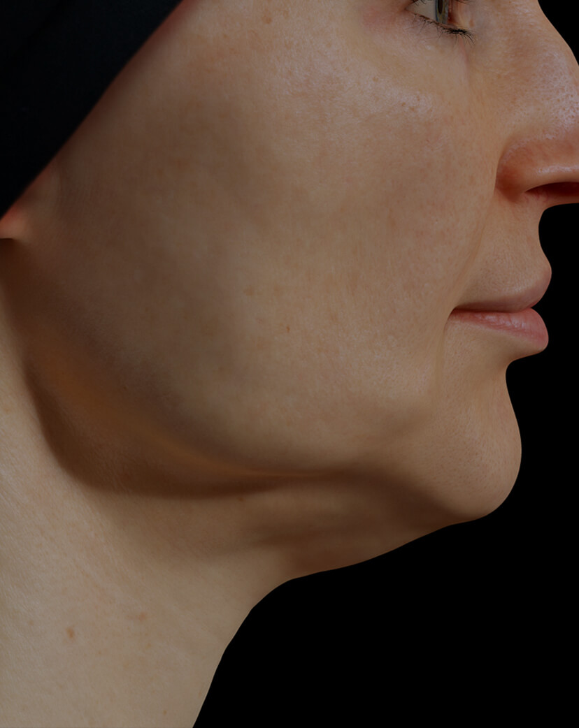 Clinique Chloé female patient with poor jawline definition treated with Venus Legacy for a more defined jawline