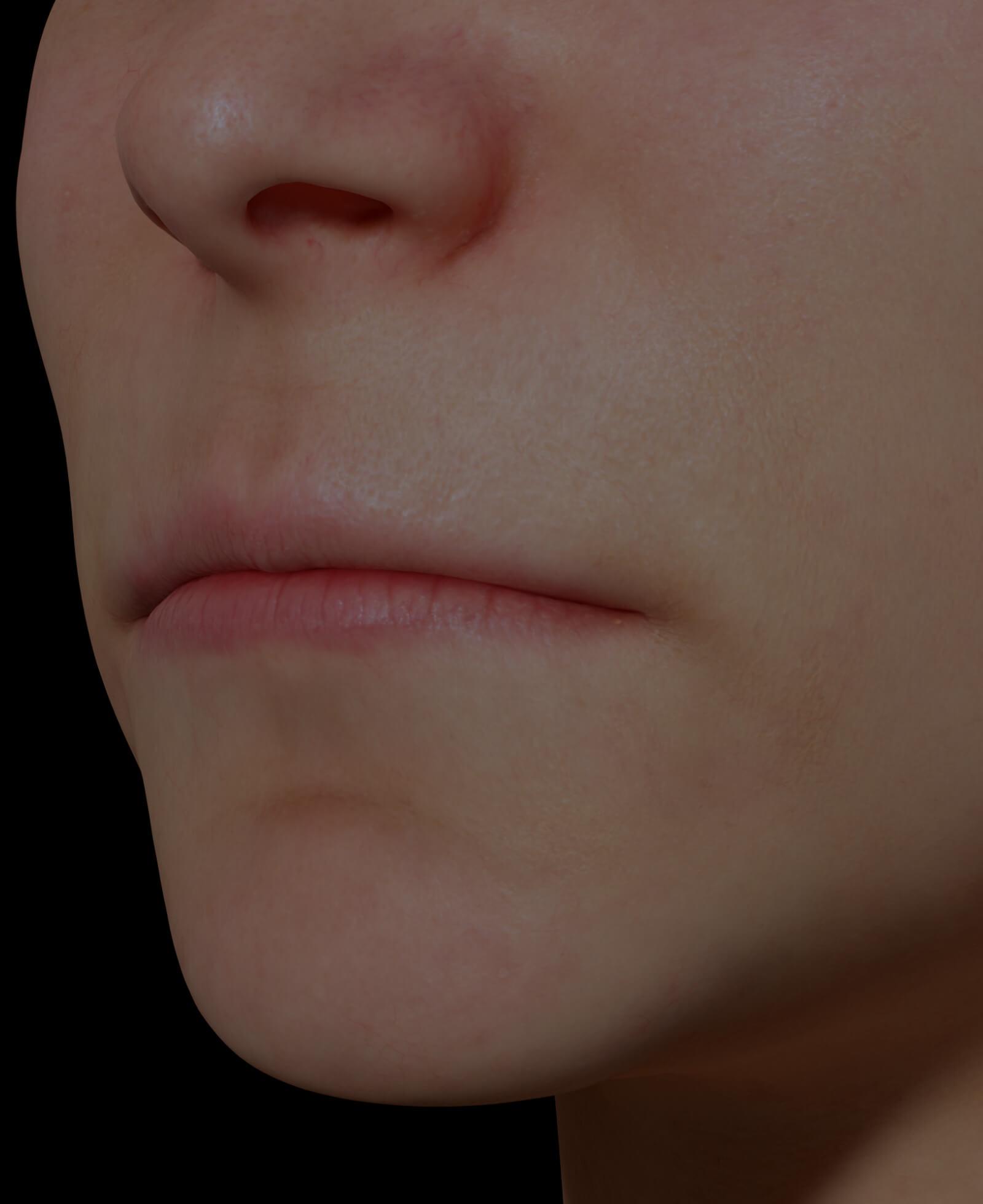 Patiente de la Clinique Chloé avec des lèvres minces