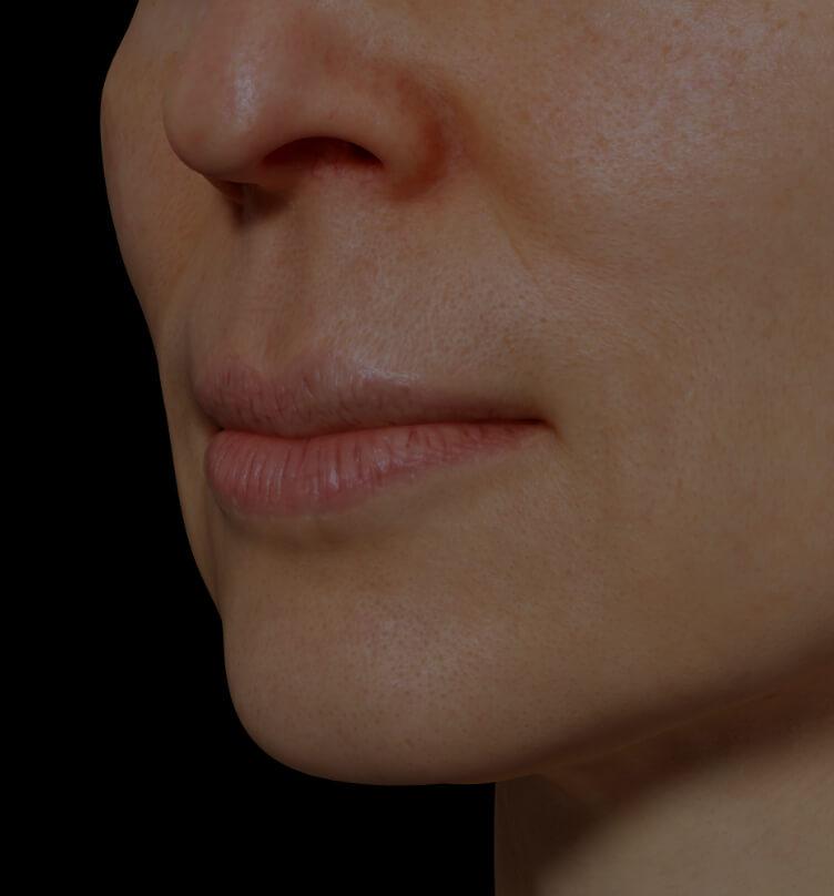Patiente de la Clinique Chloé présentant une sécheresse des lèvres