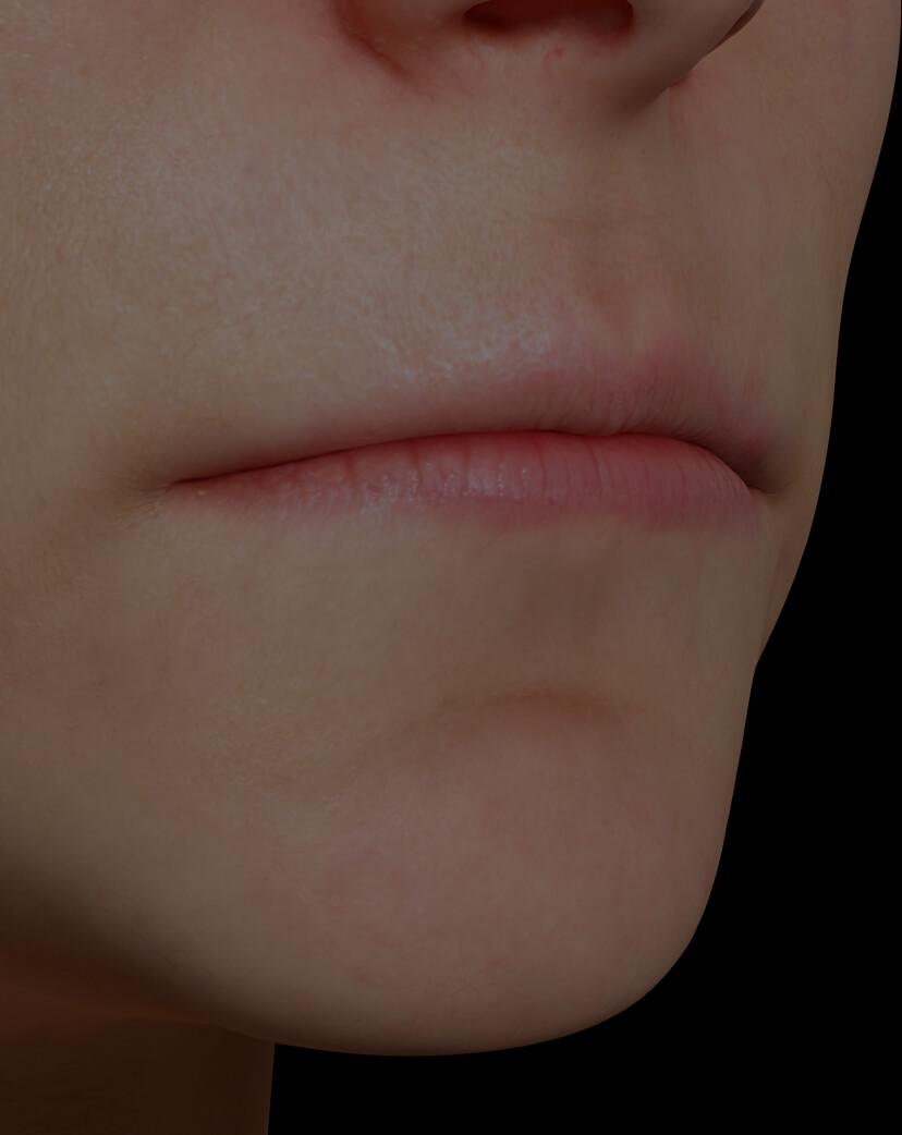 Patiente de la Clinique Chloé présentant des lèvres peu volumineuses traitée avec des injections d'agents de comblement