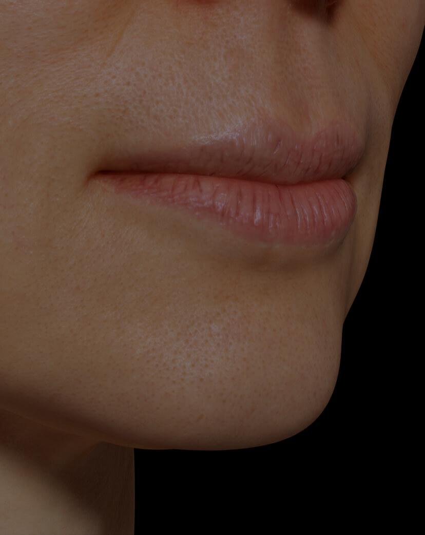 Patiente de la Clinique Chloé ayant les lèvres sèches traitée avec la mésothérapie pour hydrater les lèvres
