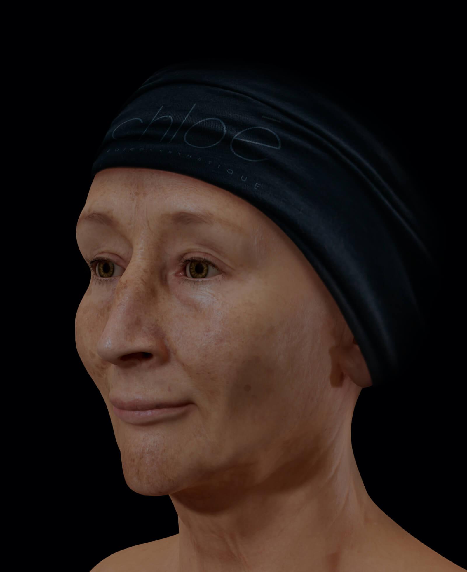 Patiente de la Clinique Chloé présentant du mélasma sur son visage