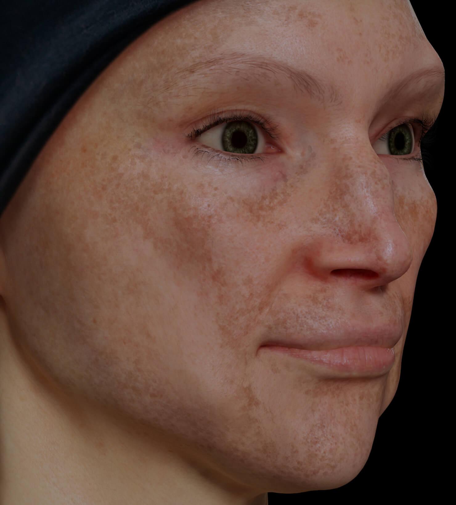 Patiente de la Clinique Chloé présentant du mélasma sur le visage traitée avec le laser fractionné