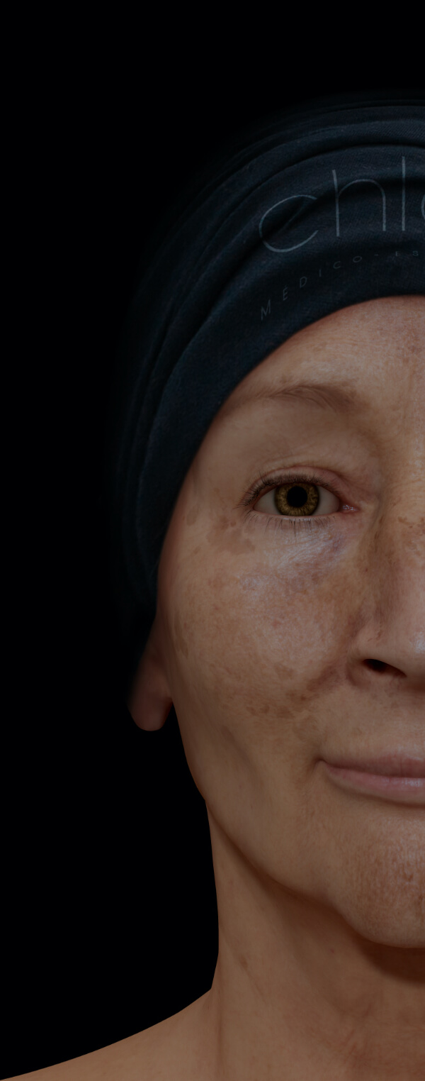 Female patient from Clinique Chloé with melasma on her face