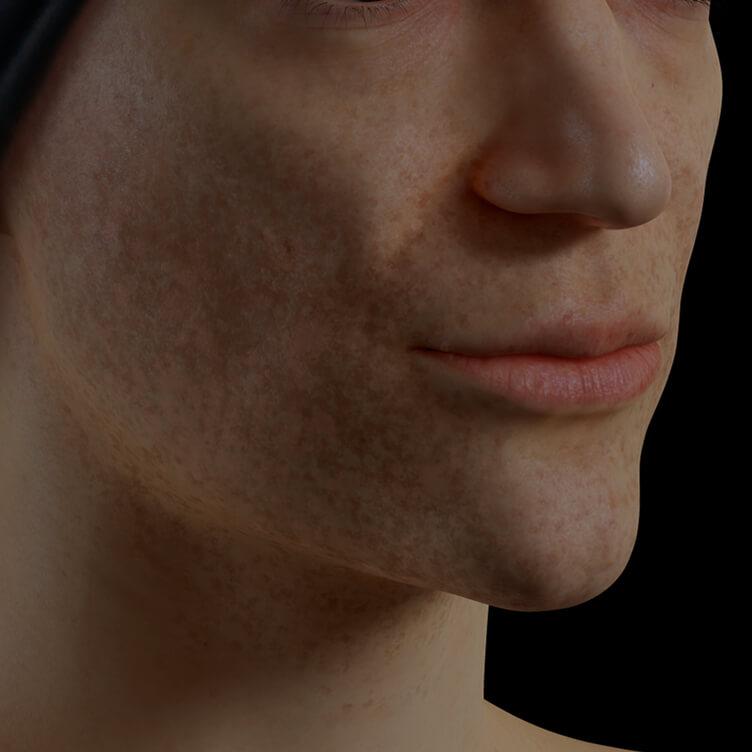 Patiente de la Clinique Chloé présentant du mélasma sur le visage traitée avec le microneedling