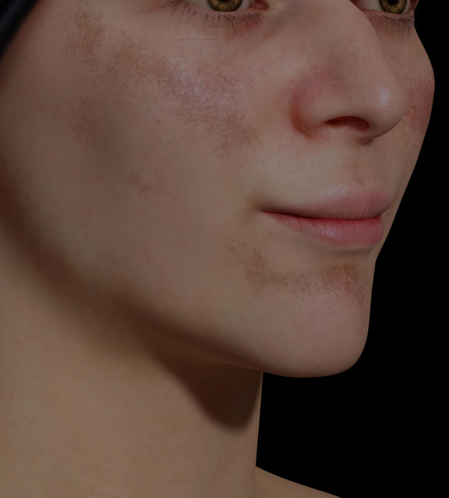 Patiente de la Clinique Chloé présentant du mélasma sur le visage traitée avec le peeling chimique