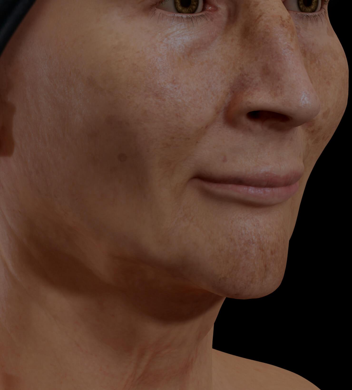 Patiente de la Clinique Chloé présentant du mélasma sur le visage traitée avec le photorajeunissement IPL