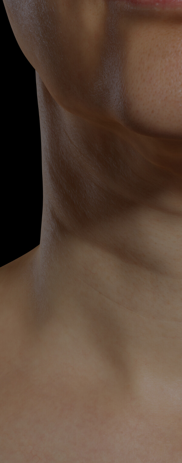Neck of a Clinique Chloé female patient showing neck skin laxity