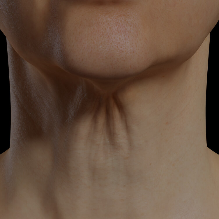 Clinique Chloé female patient with neck skin laxity treated with the Fotona 4D laser for neck skin tightening