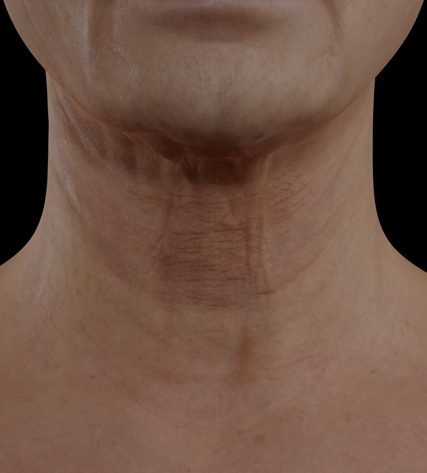 Clinique Chloé female patient with neck skin laxity treated with the fractional laser for neck skin tightening