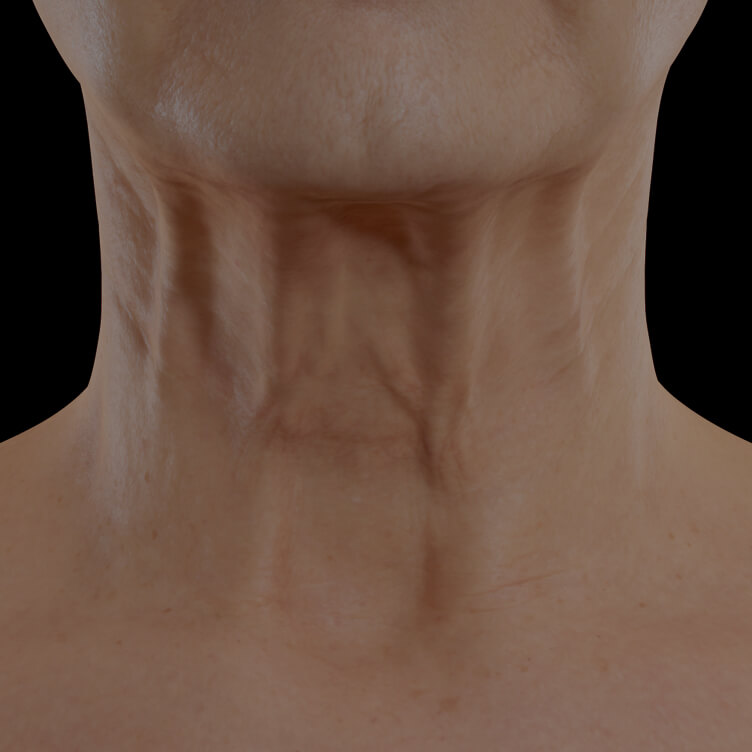Clinique Chloé female patient with neck skin laxity treated with neuromodulator injections for neck skin tightening