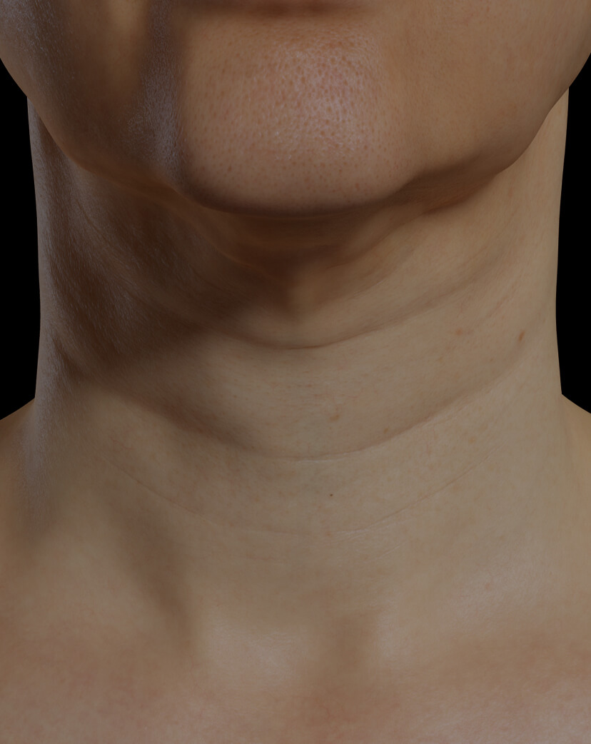 Clinique Chloé female patient with neck skin laxity treated with Profound RF for neck skin tightening