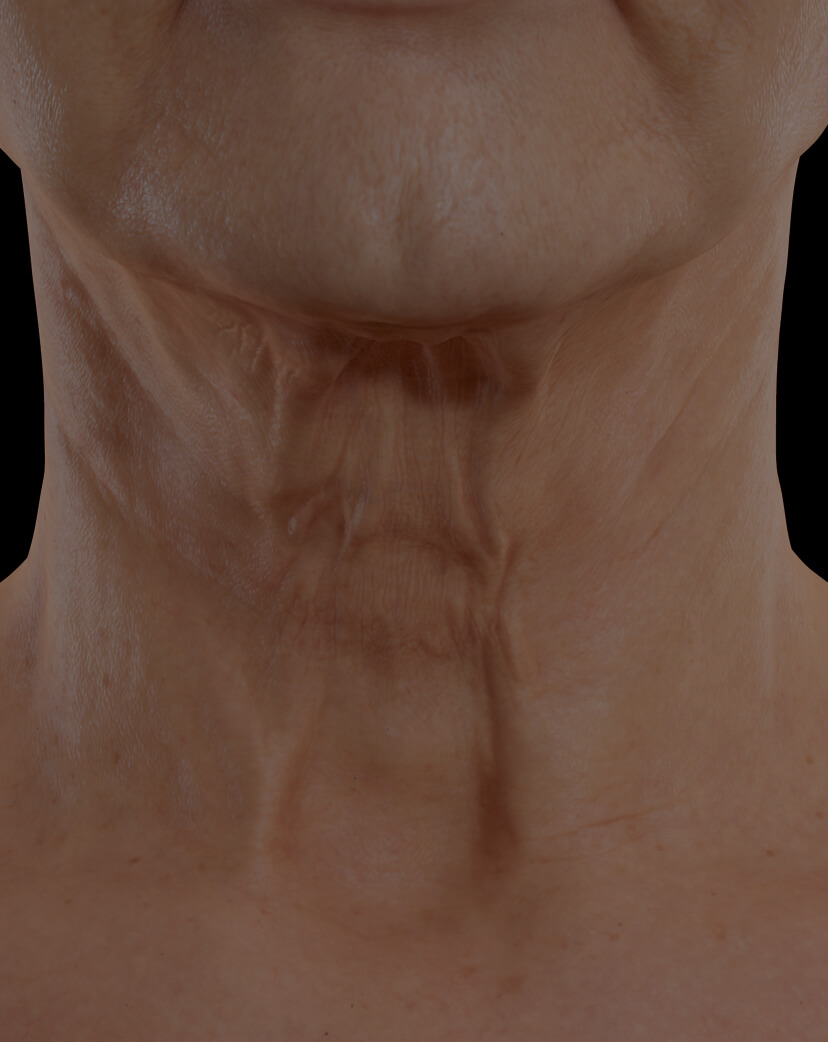 Clinique Chloé female patient with neck skin laxity treated with Sculpra injections for neck skin tightening