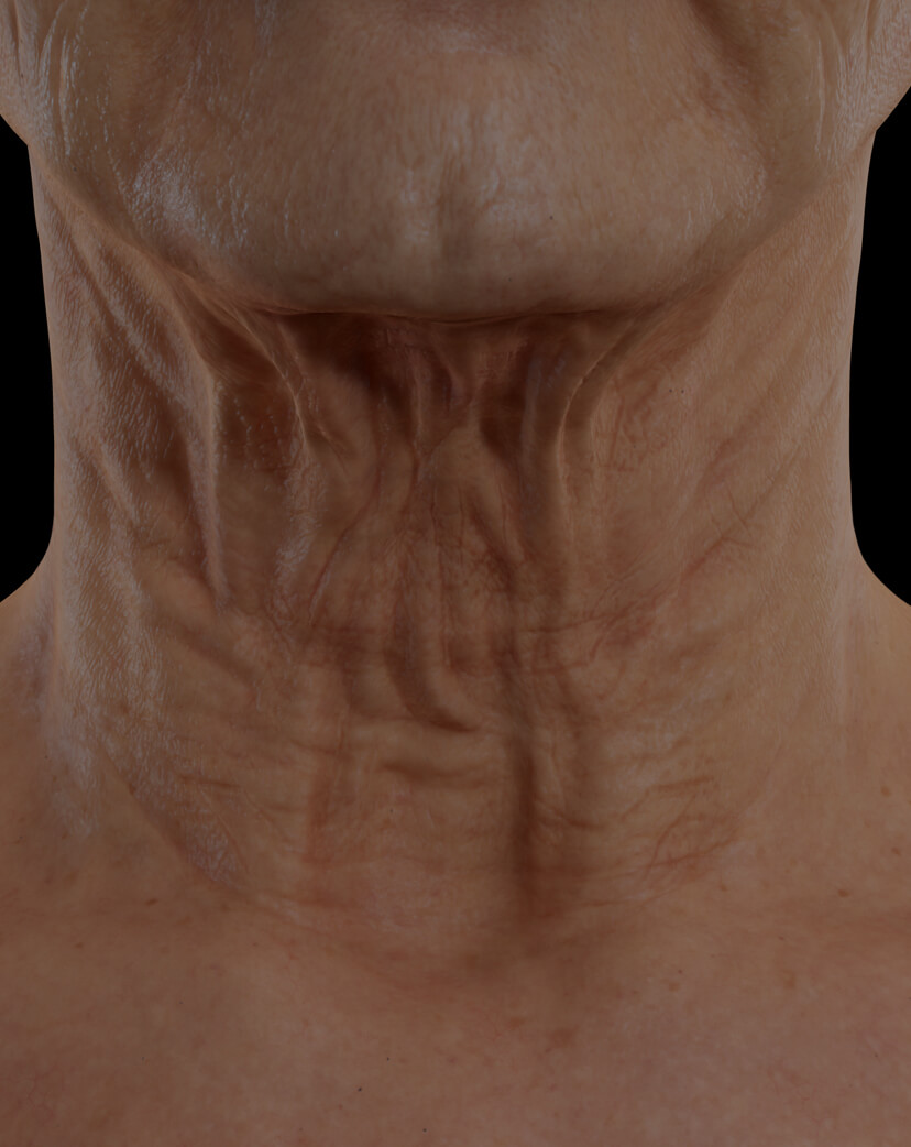 Clinique Chloé female patient with neck skin laxity treated with the TightSculpting laser for neck skin tightening