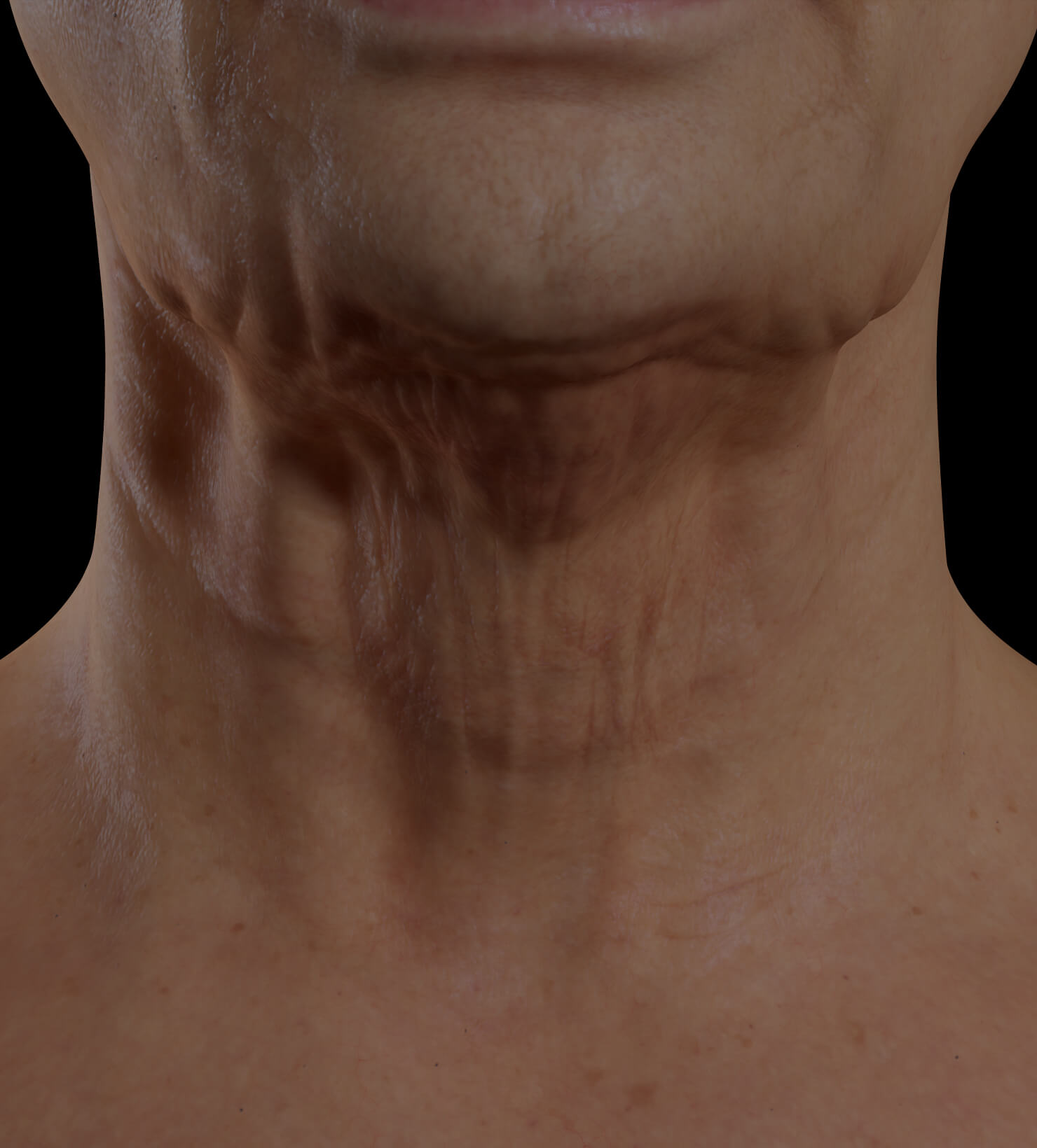 Clinique Chloé female patient with neck skin laxity treated with Venus Legacy for neck skin tightening