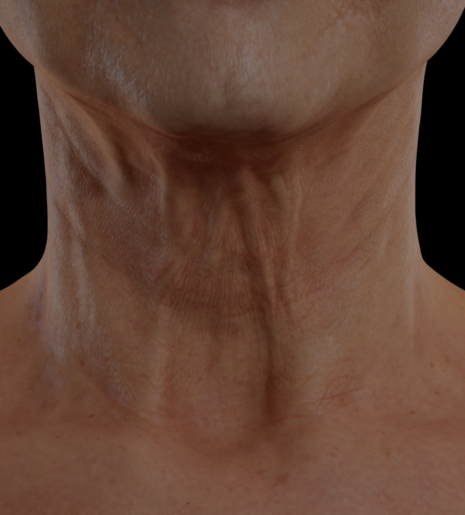 Clinique Chloé female patient with neck skin laxity treated with Venus Viva for neck skin tightening