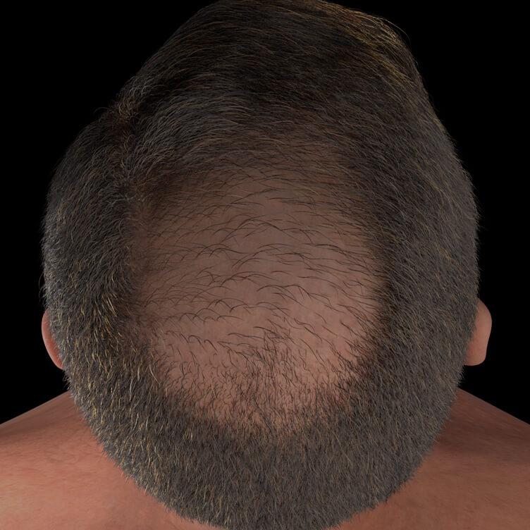 Patient de la Clinique Chloé présentant une perte de cheveux accentuée traité avec le plasma riche en plaquettes, ou PRP